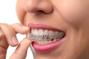 best invisalign doctor in cranberry township