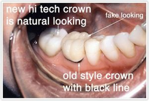 crown surgery