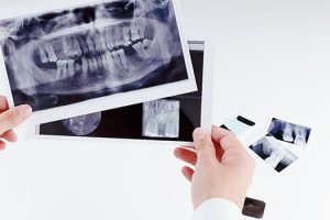 dental xrays in cranberry